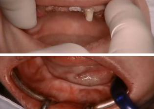 Kiindulási szájfotó