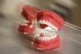Fogsorminta fogszabályozáshoz