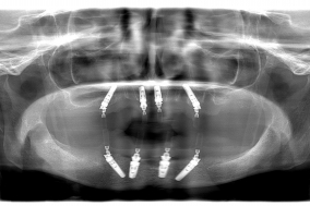 Implantáció utáni röntgenfelvétel