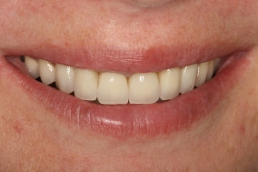 Congenital jaw malformation