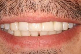 Shifted and non-vital teeth