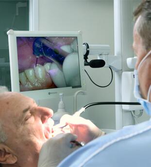 Implantátum, fogbeültetés