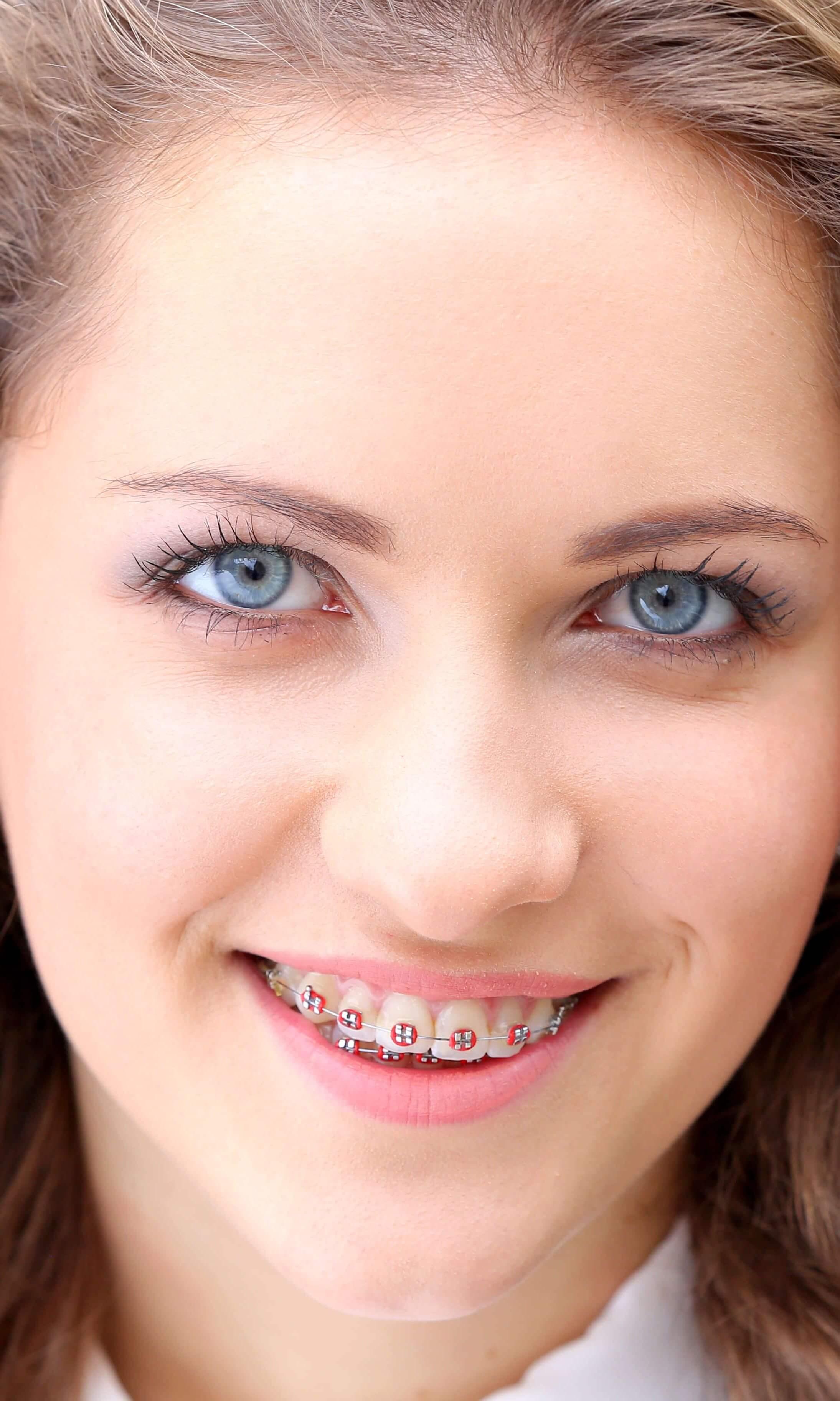 nő fogszabályozóval