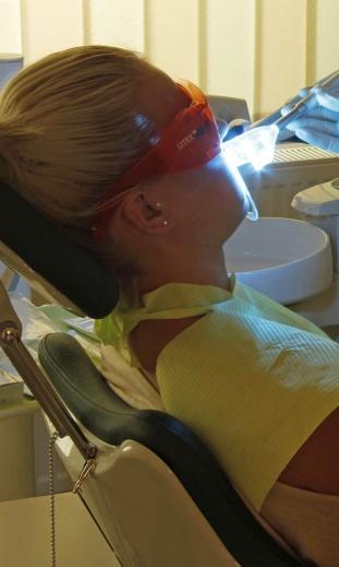 Fogfehérítés fogászati lézerrel