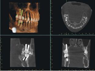 Fog CT felvétel