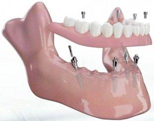 Denti on4